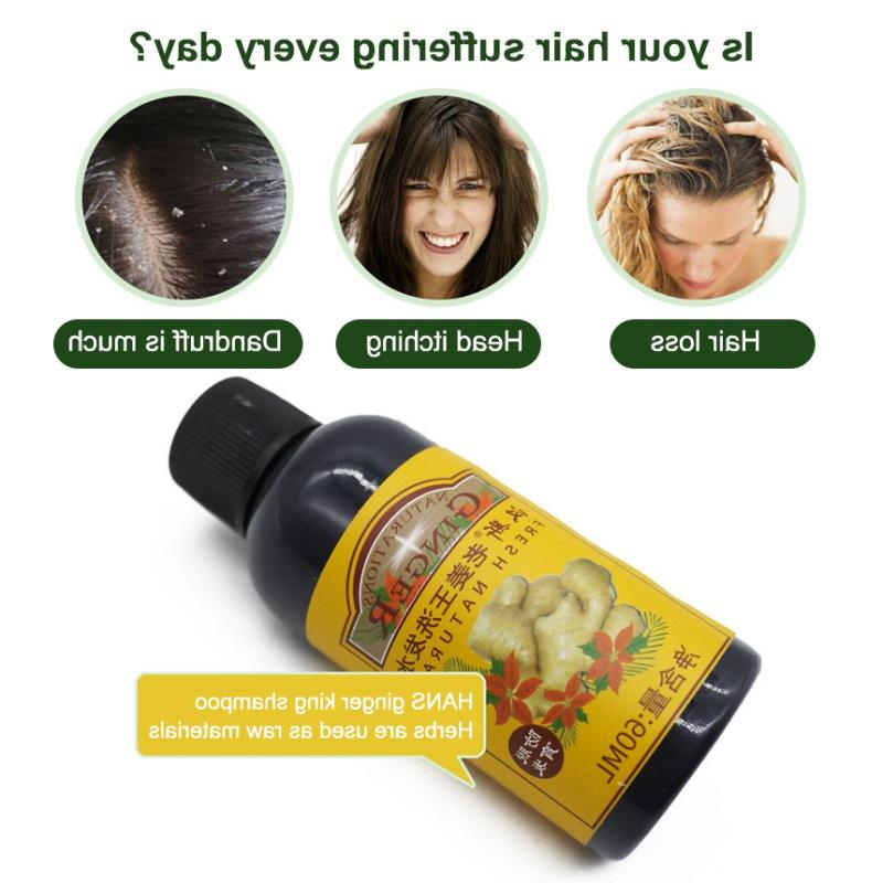 60 Ginger <font><b>Hair</b></font> <font><b>Loss</b></font> <font><b>Hair</b></font> Treatment Dandruff Itch Herbal Medicine <font><b>Shampoo</b></font>