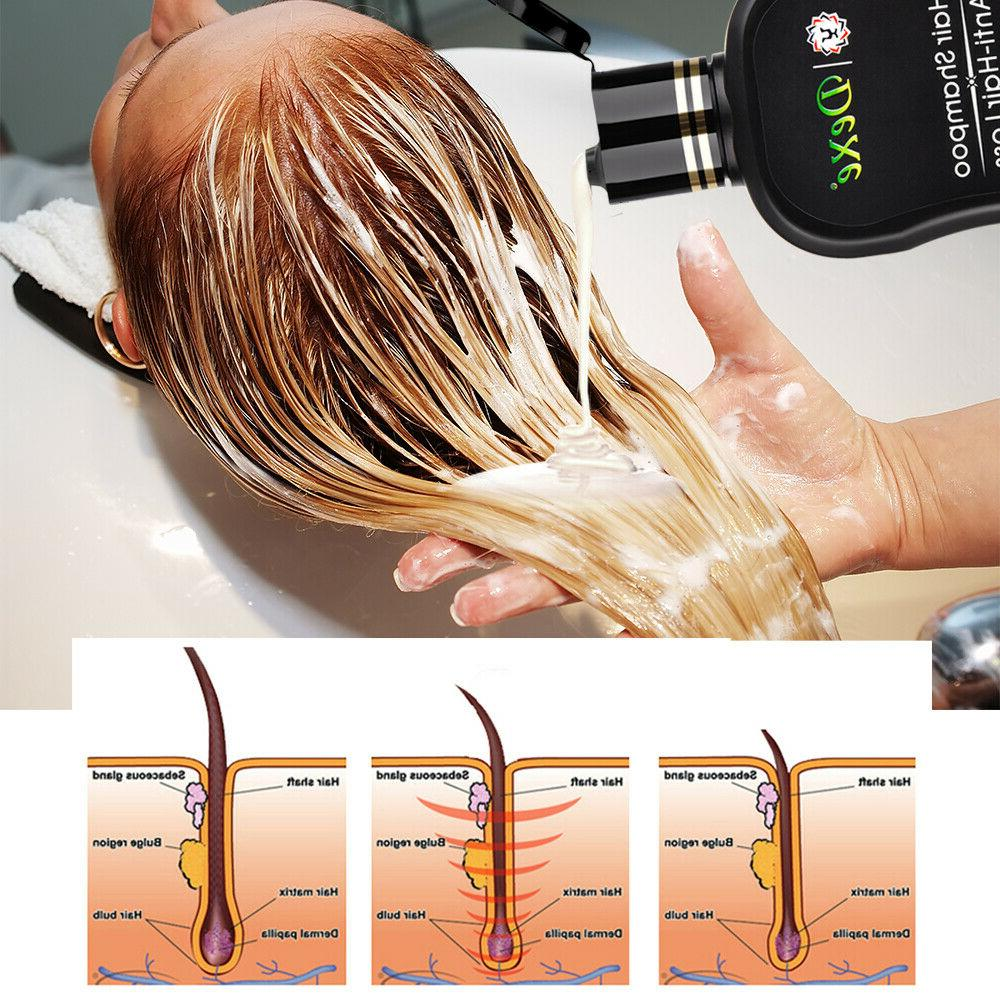 200ml Anti Hair Loss Ginger Shampoo Hair Thicken