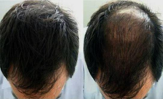 Bergamot, Hair Care With Patient with Alopecia